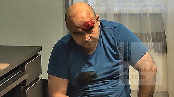Скандал в «ЛНР»: «МГБ» наехало на Иванющенко, Ахметова и Катунина