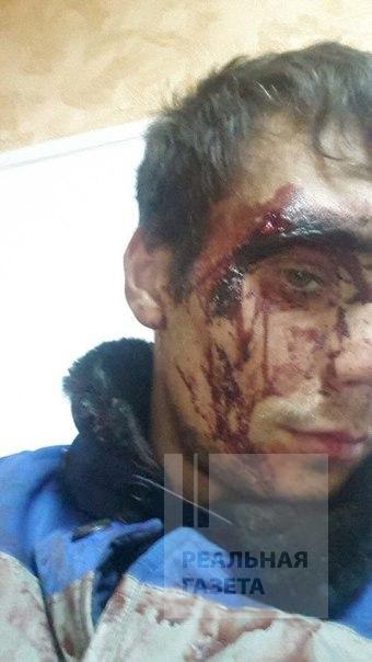 В Липецкой области беженцев из Донбасса избили местные жители (фото)